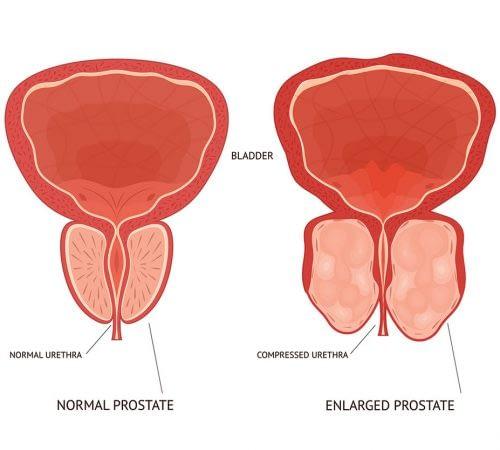 benign prostate hyperplasia